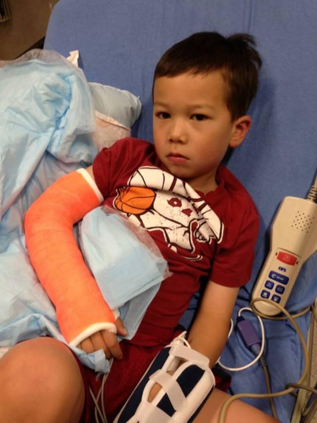 Seba broken arm
